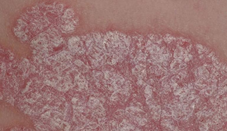 дерматит на головке у мужчин