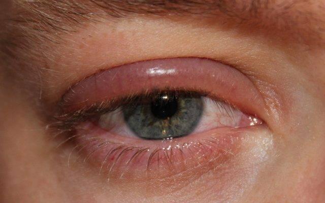 болит глаз при моргании и надавливании