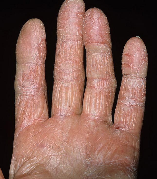Дерматит между пальцами рук