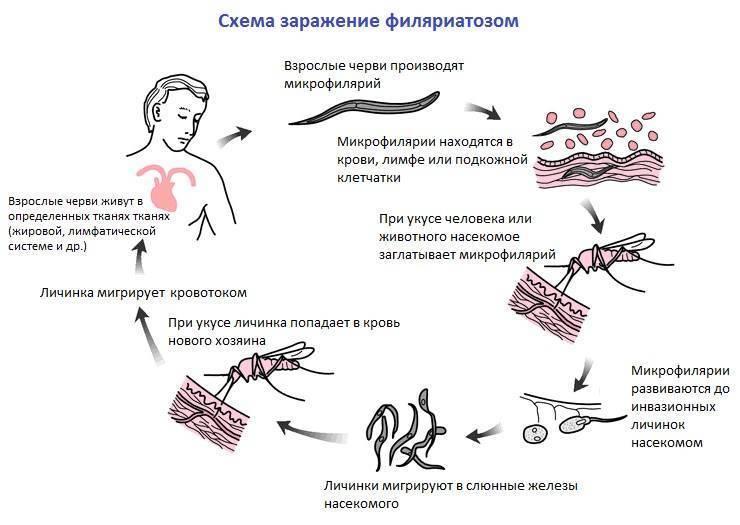 филяриоз лечение