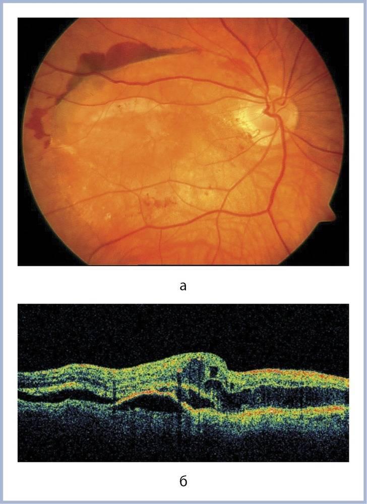 Частичная атрофия зрительного нерва и полная: что это такое, бывает ли на обоих глазах и как лечить