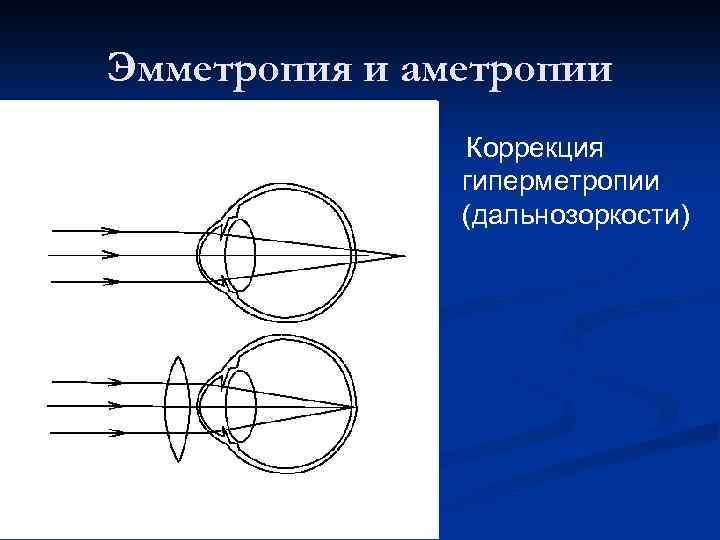 Коррекция близорукости и дальнозоркости