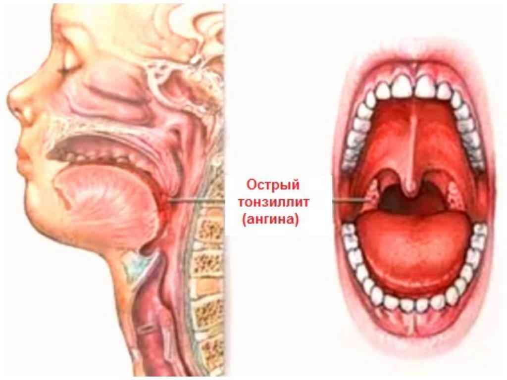 Как убрать отек горла при ангине
