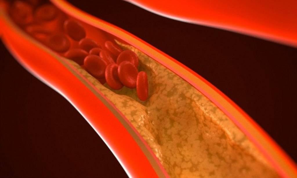 диабет и повышенный холестерин