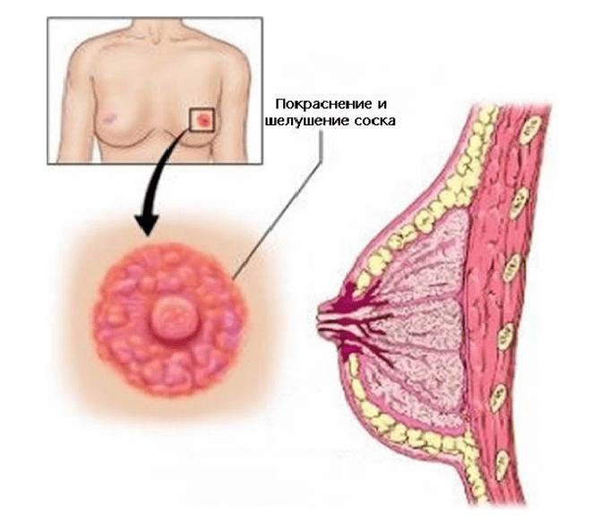 Лечение рака молочной железы: современные подходы и методы