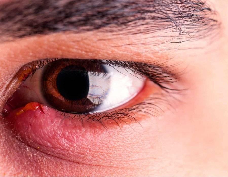 заболевания век глаза симптомы заболевания и лечение