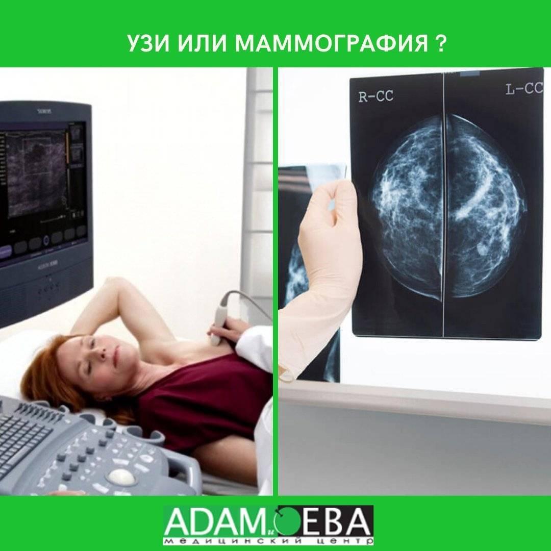 что важней узи или маммография молочной железы