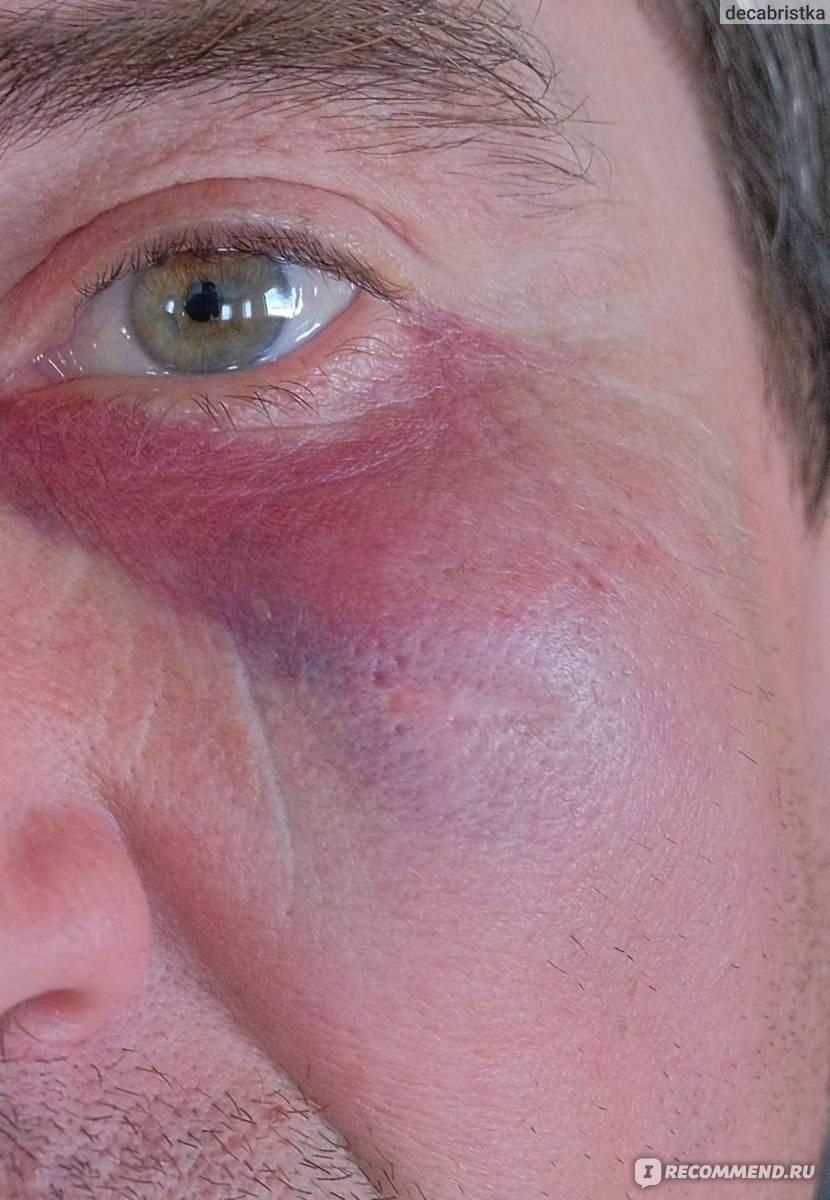 кровоизлияние под глазом