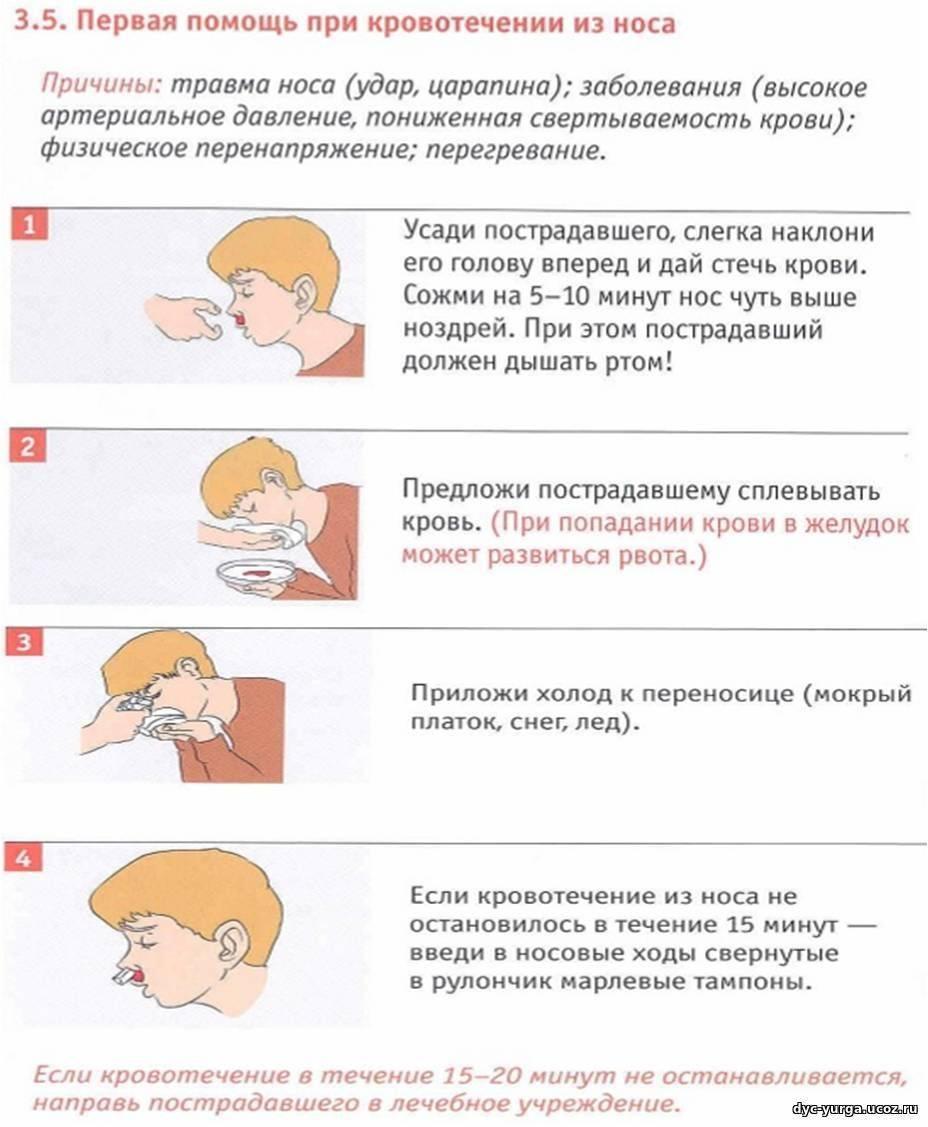 первая помощь при кровотечениях из носа