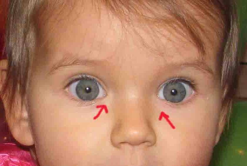 Слезится глаз у новорожденного – что делать?