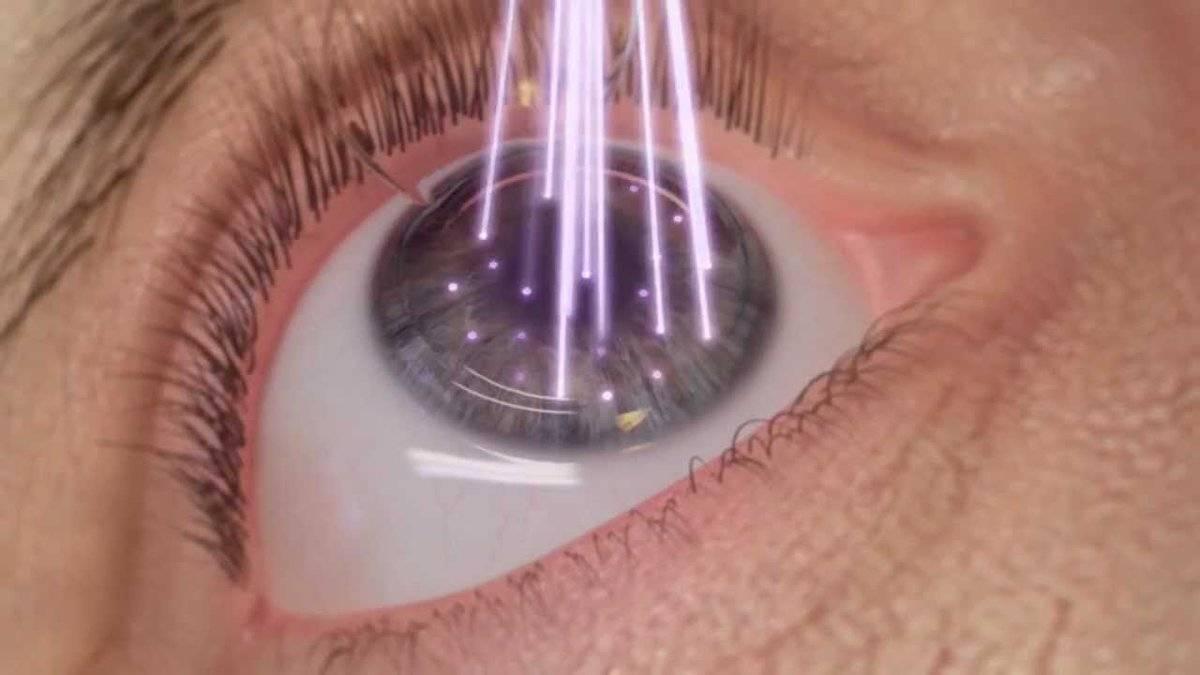 противопоказания лазерной коррекции зрения