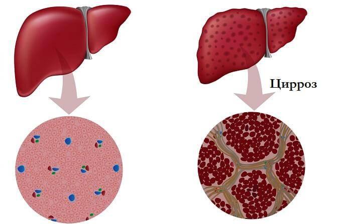 Токсический цирроз печени