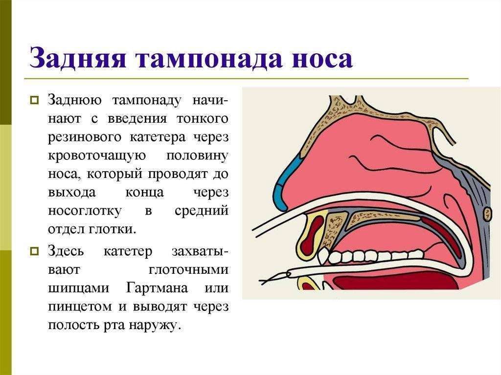 передняя тампонада носа