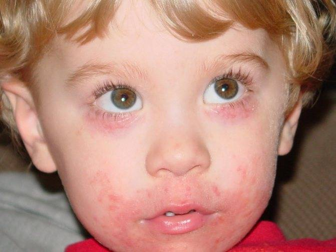 Комаровский о атопическом дерматите