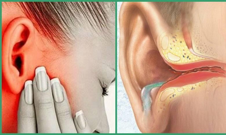 Заложенность ушей без боли: причины, симптомы и особенности лечения