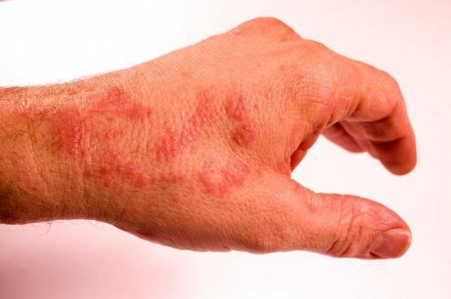 Лечение дерматита у детей | все про аллергию