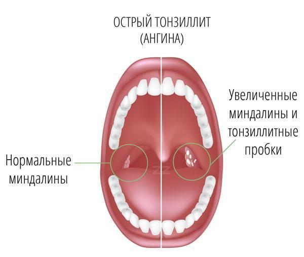 Тонзиллит – симптомы и лечение у взрослых хронического, причины и признаки