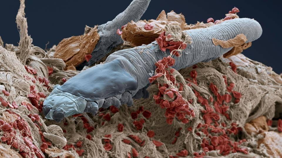 Паразиты под кожей человека и вызываемые ими заболевания