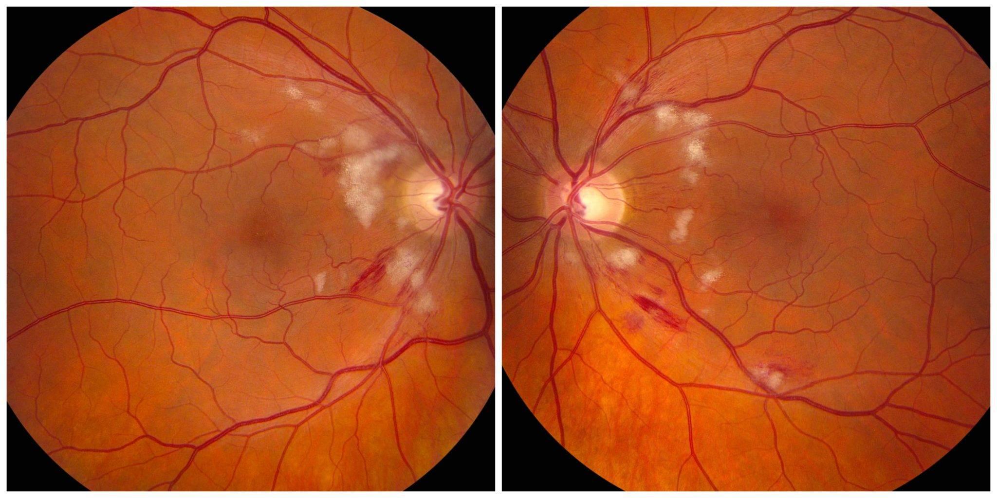 ангиопатия сетчатки обоих глаз у ребенка