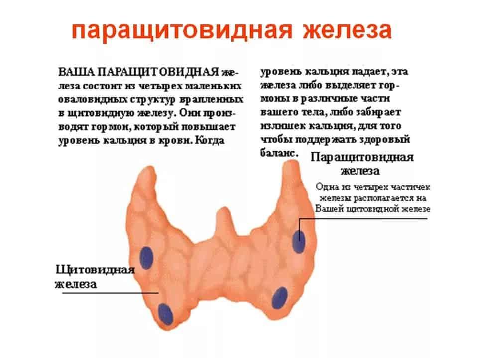 Аденома паращитовидных желез