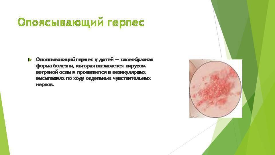 Клиническая картина генитального герпеса в интимной зоне у женщин — неизлечимая половая инфекция
