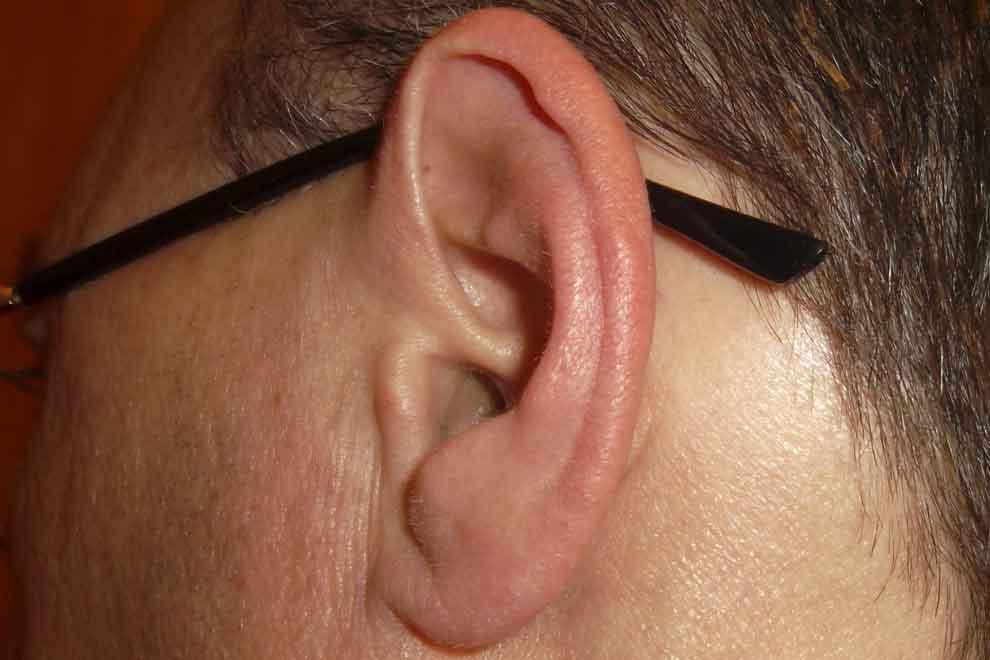 красные уши
