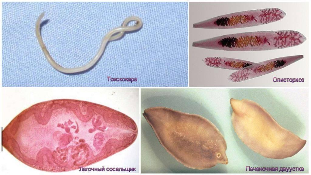 Паразиты в печени: симптомы и лечение