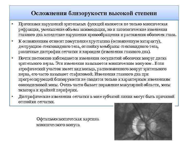Инвалидность при миопии (близорукости)