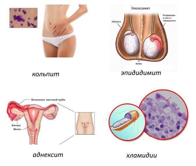 Хламидиоз у женщин и у мужчин – симптомы и лечение