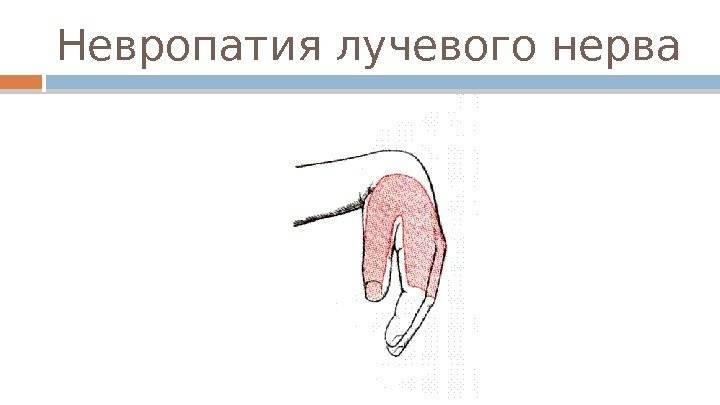 Неврит