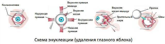 Энуклеация глазного яблока: суть, показания, проведение, реабилитация