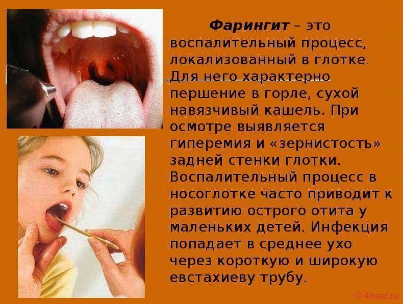 Как лечить фарингит у детей – лечение острого воспаление горла без температуры