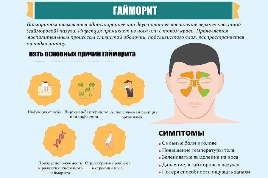 Гайморит: симптомы и лечение у взрослых