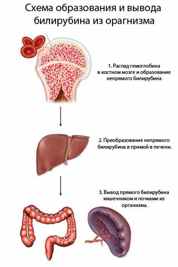 Гипербилирубинемия: причины, симптомы, лечение, последствия