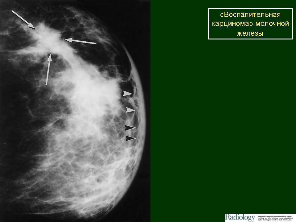 Карцинома молочной железы — как вовремя распознать и вылечить болезнь?