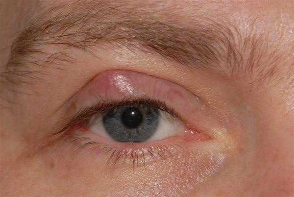 белое пятно на веке глаза