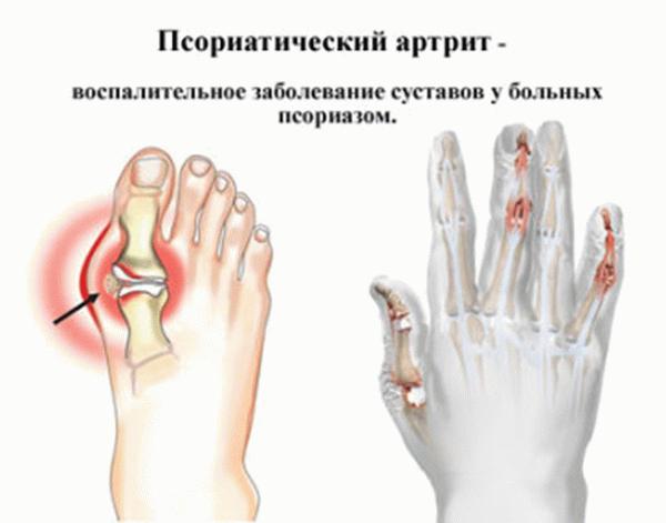 Псориатический артрит: эффективные препараты и народные средства