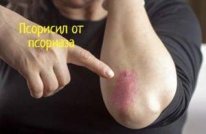 Лечение псориаза препаратом йодинол