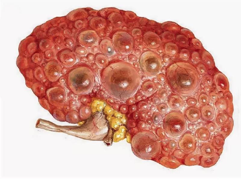 Множественные кисты в печени: причины и лечение