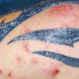 Допустимость татуировок у людей с псориазом
