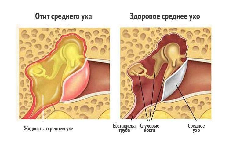 Лечение двухстороннего отита у взрослых и детей