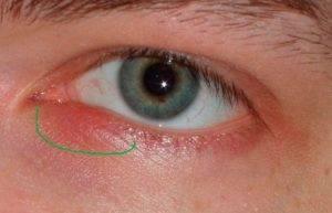 Отчего болит глаз при моргании