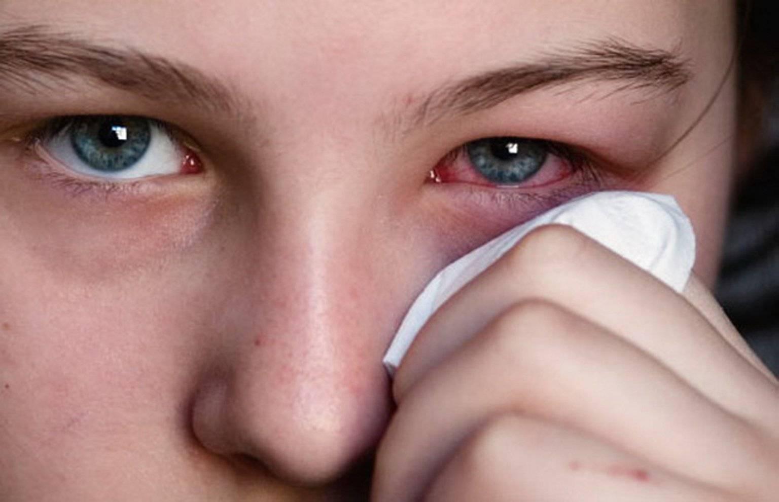 Причины и лечение выделений из глаз