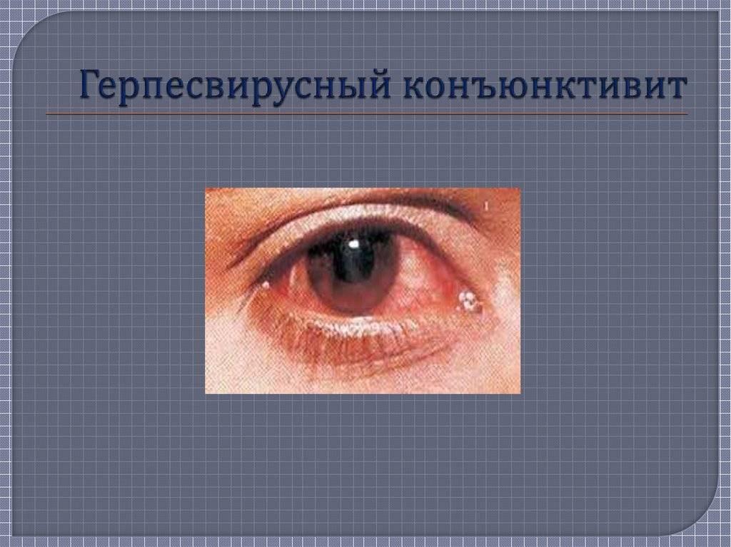Герпетический конъюнктивит лечение фото симптомы и причины