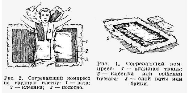 Водочный компресс от кашля взрослому сколько дней