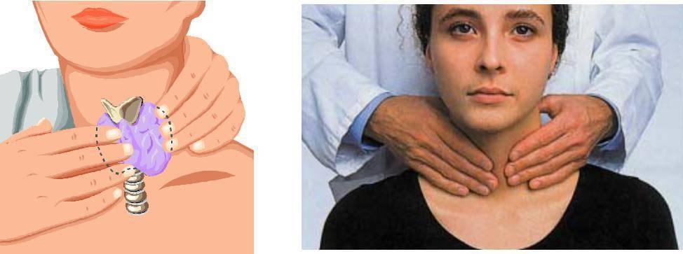 мягкая щитовидная железа