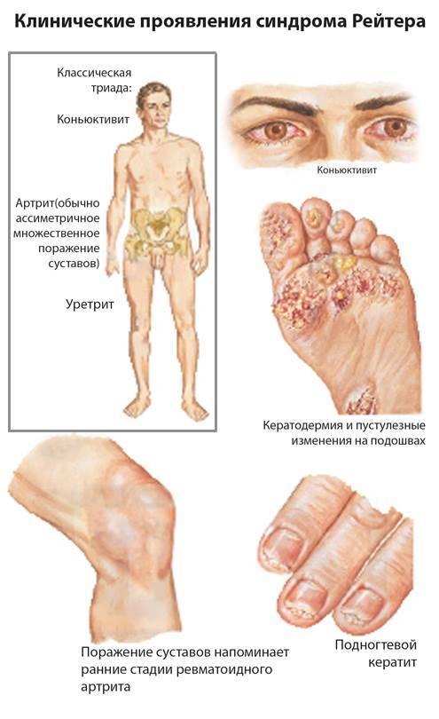 Хламидиоз у мужчин: симптомы, схемы лечения, эффективные препараты