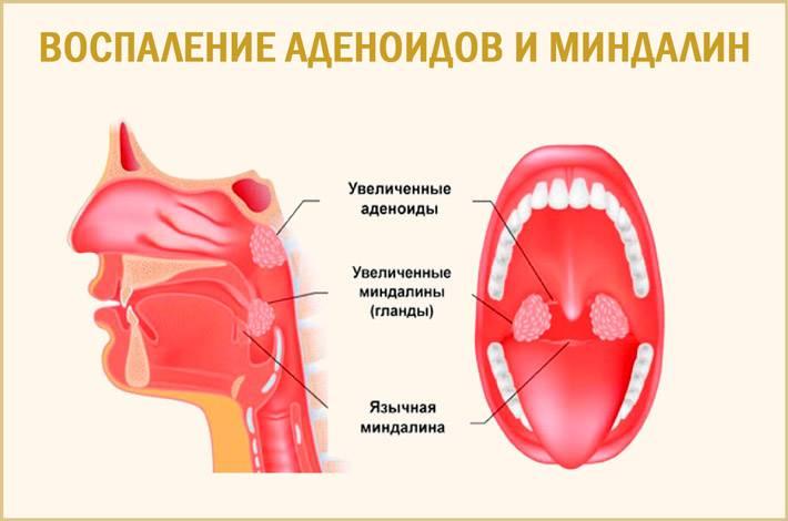 Аденоидит у детей: симптомы и лечение