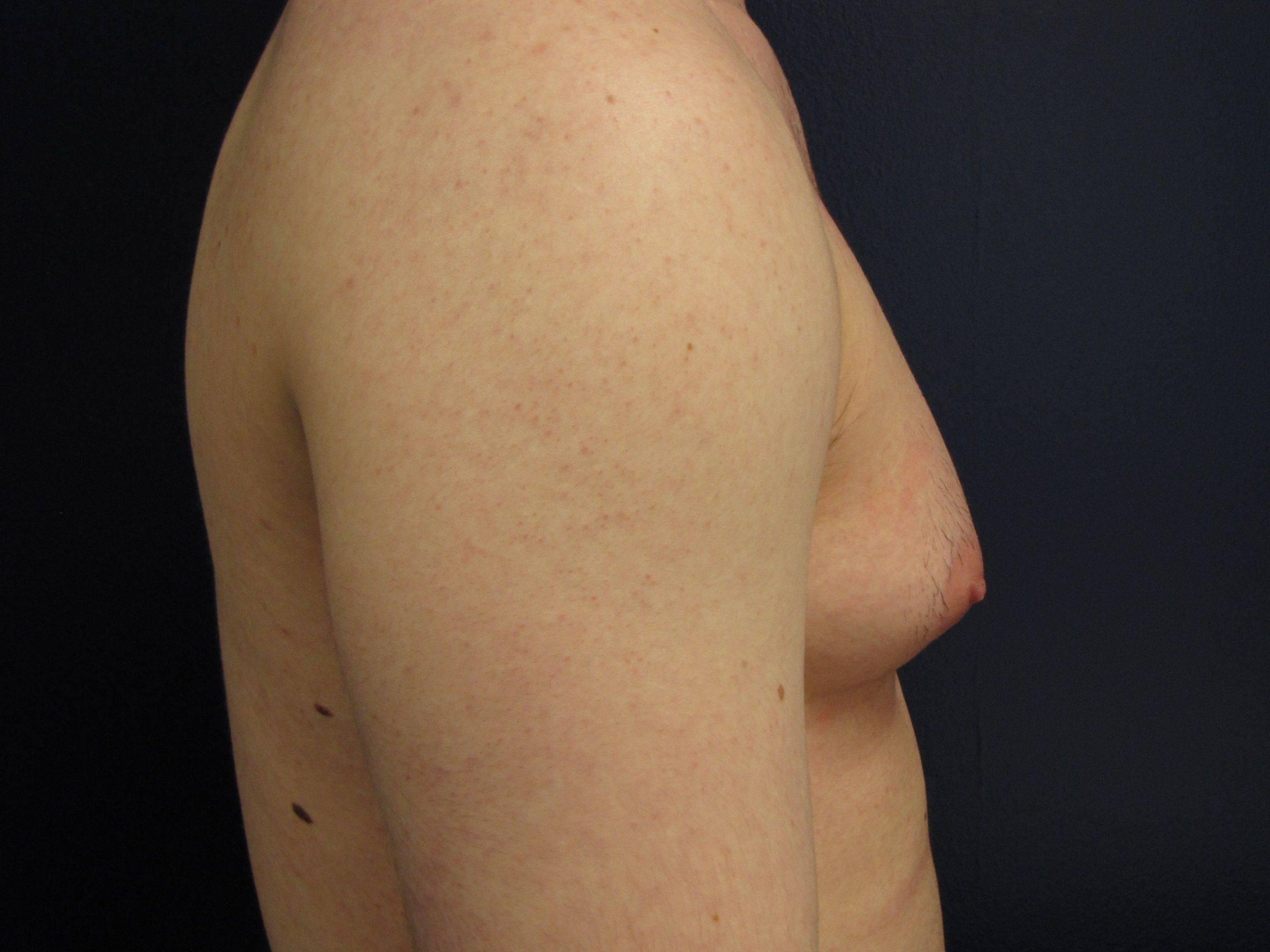 Гинекомастия и рак грудной железы у мужчин