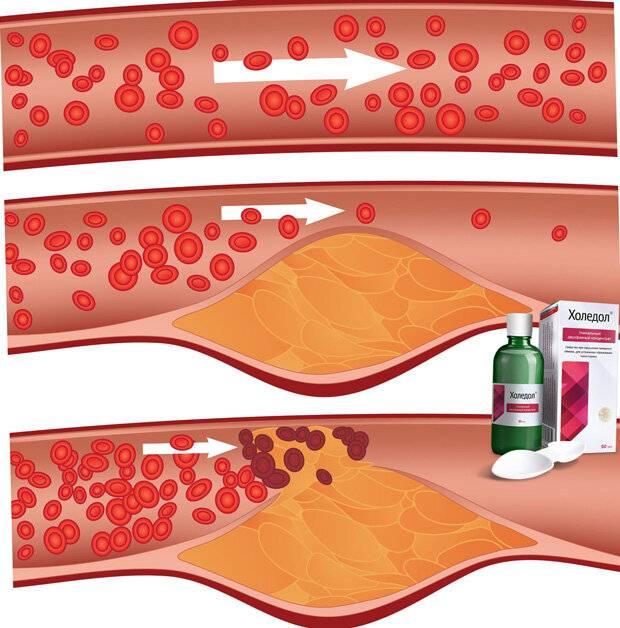 5 способов контролировать уровень холестерина